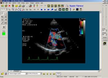 Program 228 image
