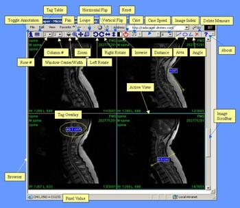 Program 151 image